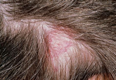Tinea capitis: ringworm of the scalp (lesion) - Stock